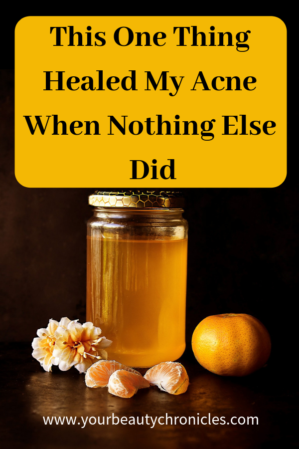 This One Thing Healed My Acne When Nothing Else Did